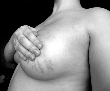 An example of stretch marks after breast implant surgery