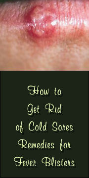 How to get rid of cold sores | fever blisters quickly and easily