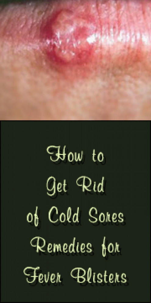 How to Get Rid of Cold Sores Quickly