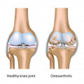 Most Common Forms of Arthritis