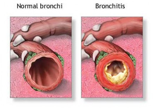 Clogging of the bronchi