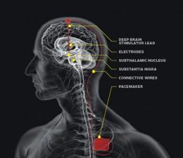 neurological pacemaker