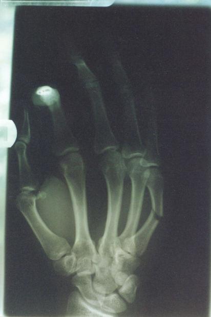 Broken bone, lower left.
