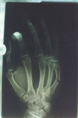 Broken bone, lower left.