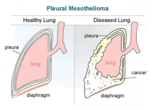 Diseased Mesothelioma lung.