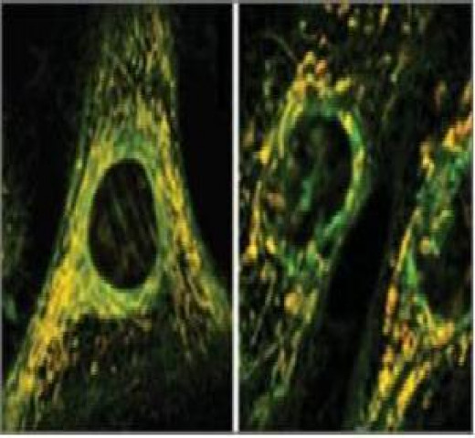 This figure shows the effect of oxidative stress on mitochondria. A long highly branched normal mitochondria of a healthy cell (left). Short, unbranched mitochondria after the treatment with antibiotics (right).