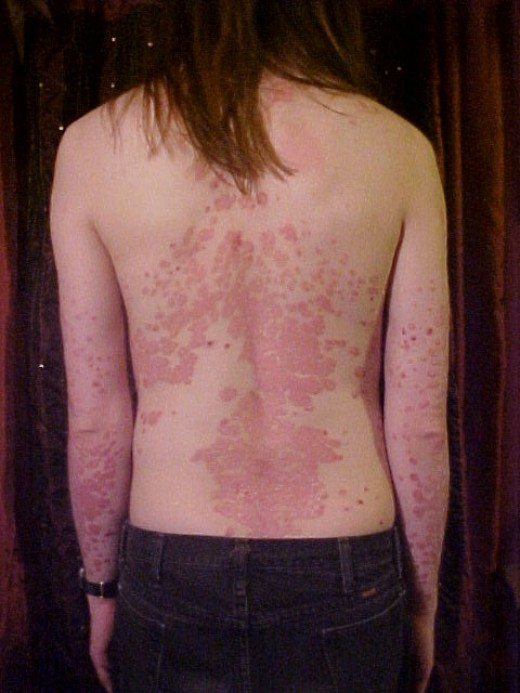 A young man affected by psoriasis