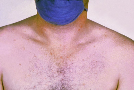 Public Domain ---Rose spots on the chest of a patient suffering from Typhoid caused by Salmonella
