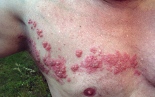 Shingles on the chest