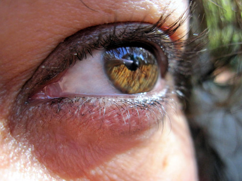 Damage to the retina as a result of diabetes may result in impaired vision or blindness