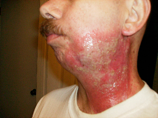 2nd & 3rd Degree burns after a 'boost' of radiation therapy.