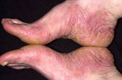 Contact Dermatitis Feet: Are Your Shoes Making You Sick?