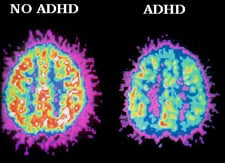Image of two brains- one functioning normally, and one with a diagnosis of ADHD- compared while completing a task.
