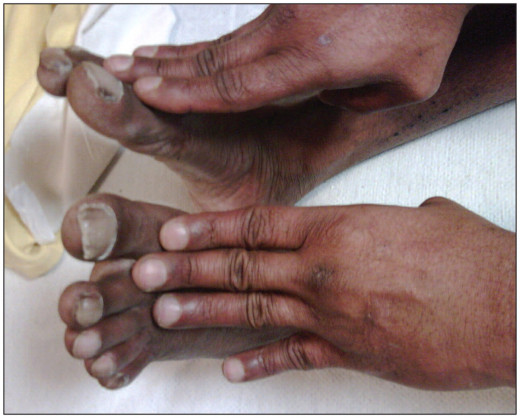In low cardiac output states, peripheral vasoconstriction gives rise to coldness of the palms and feet