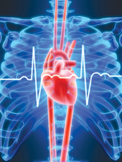 This is the pathophysiological state in which the heart is not able to pump adequate amounts of blood to meet the metabolic demands of the body