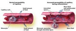 Other Drug Therapies (Vasodilators & Sympathomimetics), Refractory Cardiac Failure And Pulmonary Edema