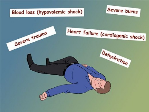 The Shock syndrome is characterised by rapid thready pulse, cold clammy skin and systolic blood pressure below 90 mmHg. Alteration in the consciousness such as agitation, somnolence, confusion or coma is a common feature. The urinary output falls bel