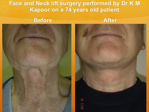 Face- and neck- lift surgery, before and after