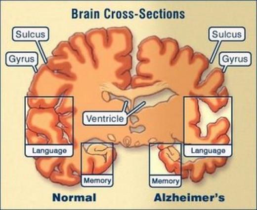 Diagram of brain damage
