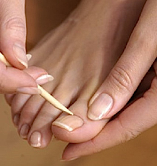 Yep! Your toenails have cuticles too.