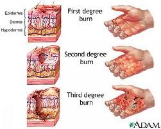 Diagram of thermal burn type