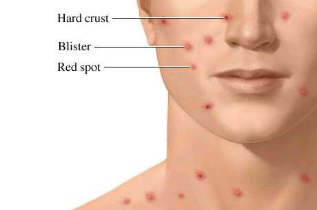 Adult chicken pox rash