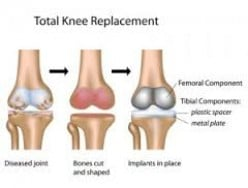 Total Knee Arthroplasty - Total Knee Replacement Physiotherapy in Gurgaon