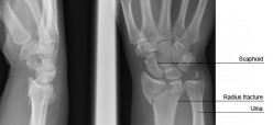 Colle's  Fracture and its physiotherapy treatment