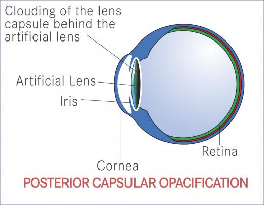 Posterior Capsule Opacity