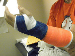 If a person is hyposensitive to pain, they may not realize they have injured themselves.
