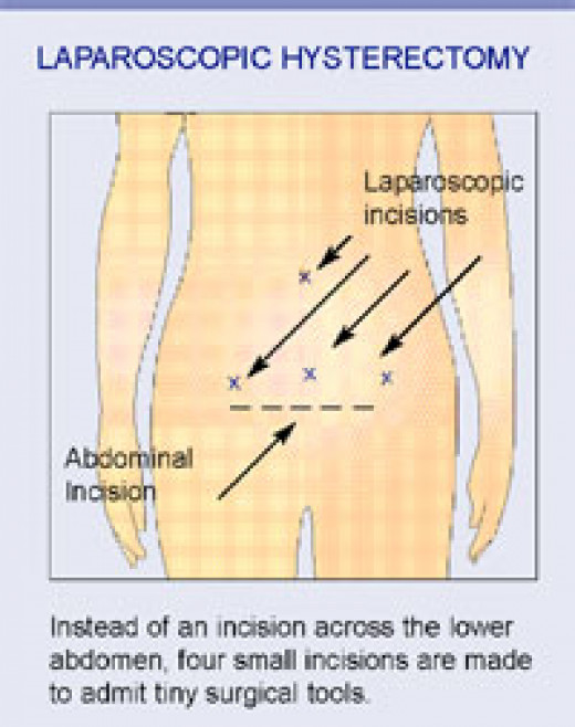 Different types of incisions for a hysterectomy