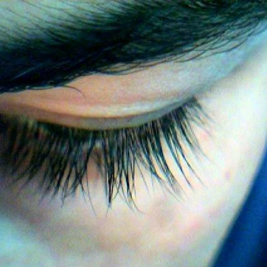 Eyelashes are the most common site for the eyelash mite. However, there are other areas they inhabit.