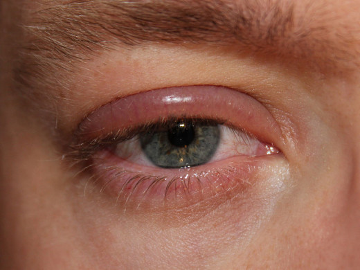 Blepharitis - often caused by too many eyelash mites colonising the eye area.
