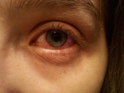 Conjunctivitis is another condition that may be caused by the eyelash mite.