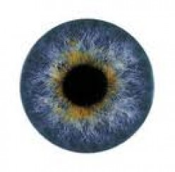 Excessive Eye Blinking and Squeezing May be Blepharospasm--a Movement Disorder