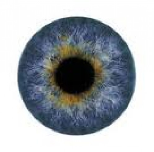 Excessive Eye Blinking and Squeezing May Be a Movement Disorder Called Blepharospasm