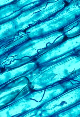 Detail on hyphae growing between plant cells.