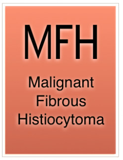 Malignant Fibrous Histiocytoma (MFH): Cancer Diagnosis and Treatment Issues