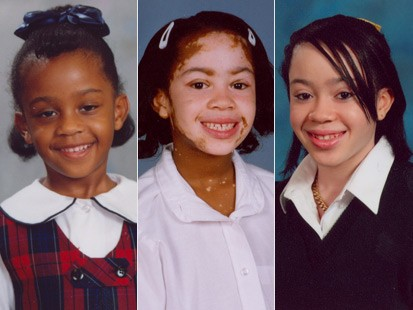 A young girl with an extreme cause of vitiligo. Her skin-tone gradually changed over time.