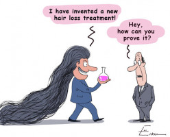Top 5 Hair Loss Treatments