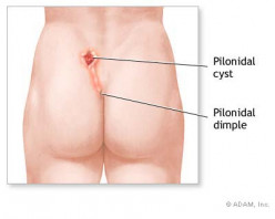 Have YOU Got These Pilonidal Cyst Symptoms?