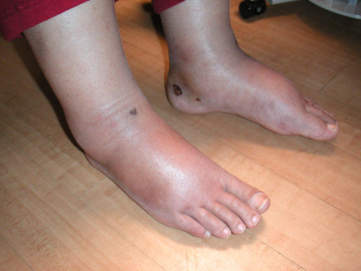 Lymphodema, or swelling of the extremities is sometimes caused by medications