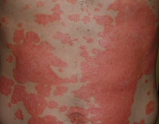 Psoriasis – Images, Causes, Symptoms, Treatment | hubpages