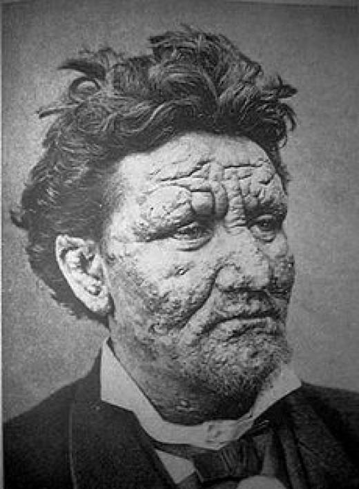 230px-Leprosy.jpg