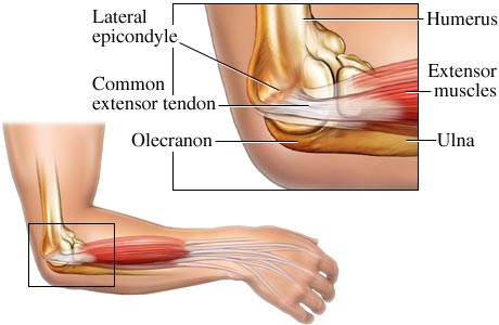 A picture showing tennis elbow.