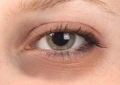 How to get rid of dark circles and puffy eyes with home remedies