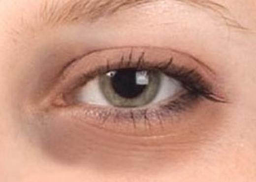 dark circles around the eyes