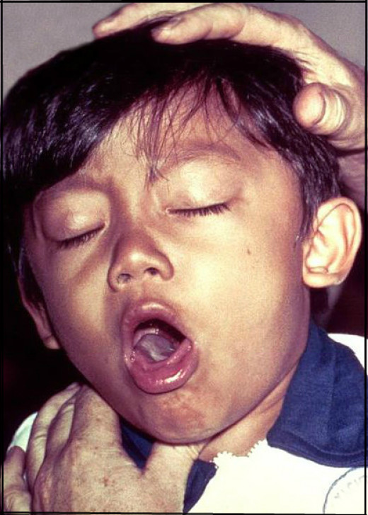 A young boy with an awful cough.. | Photo editing by: TDowling