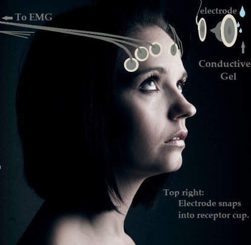 EMG set-up for Tension, Migraine Headache Therapy or Stress