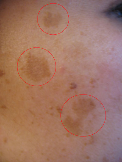 Moles and skin changes can happen for all types of reasons.